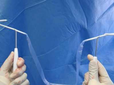 Причины и лечение инфекций мочевыводящих путей