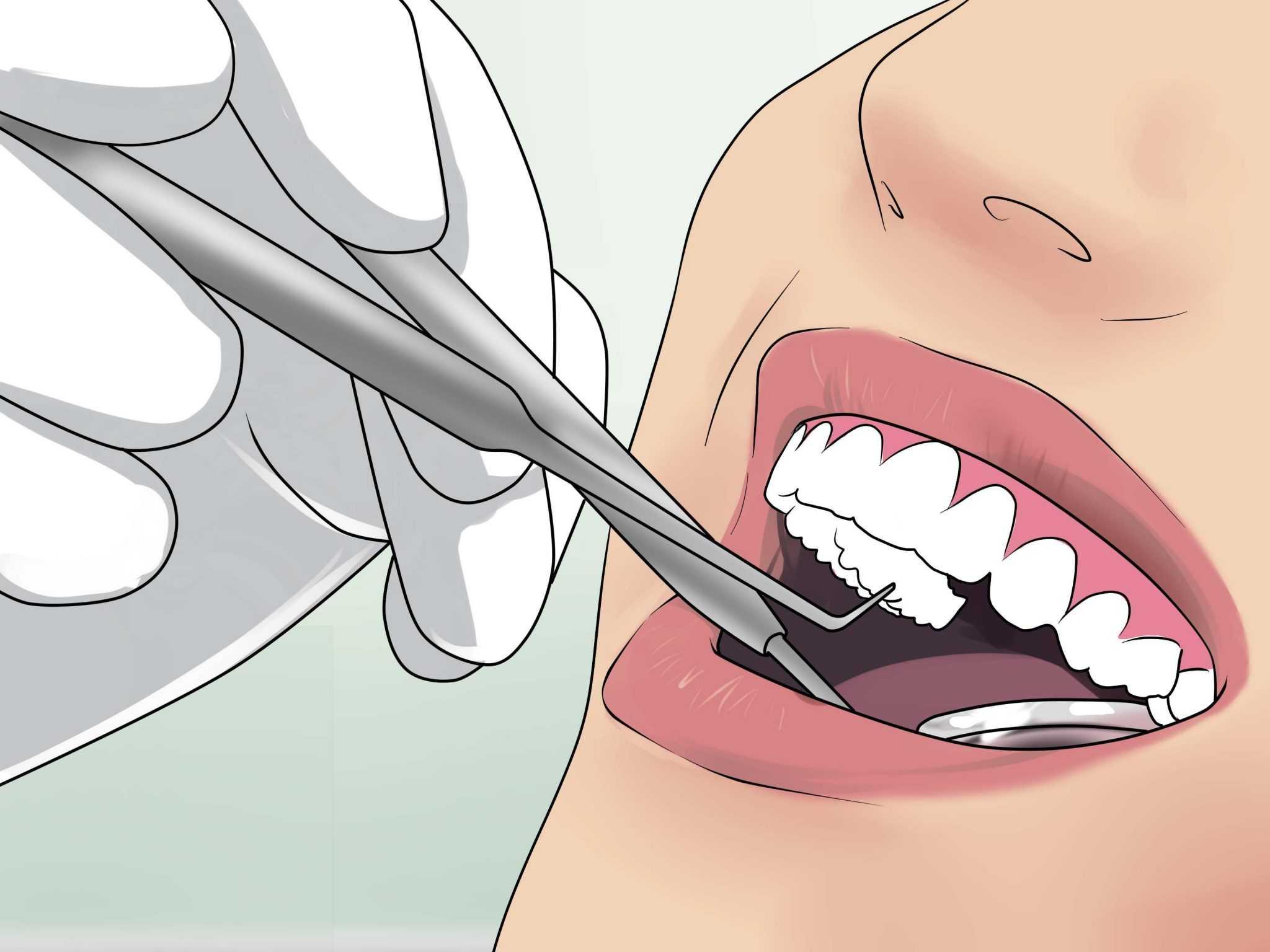 Как справиться с инфекциями после удаления зуба