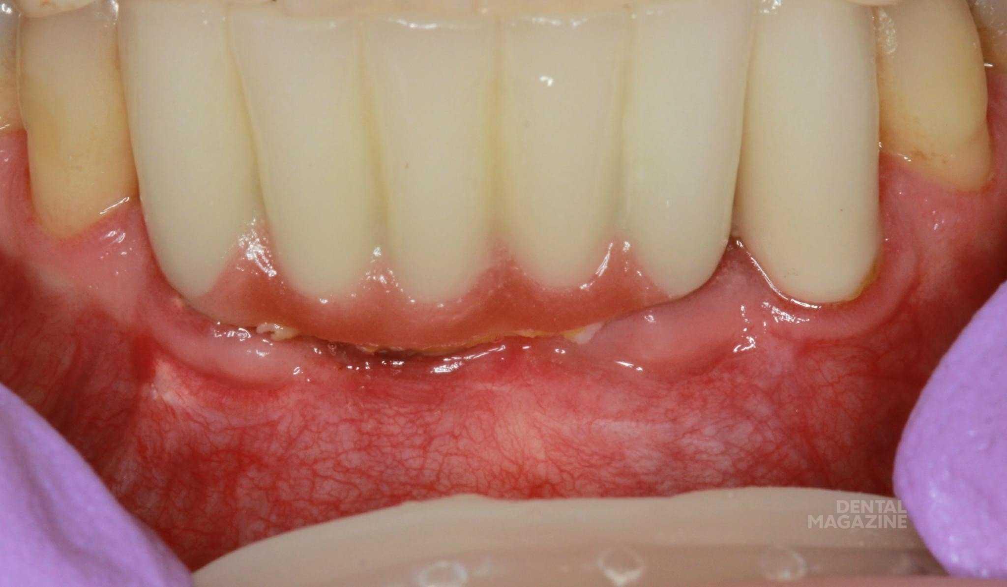 Инфекции зубов и десён были напрямую связаны с париентальным метаболизмом кальция