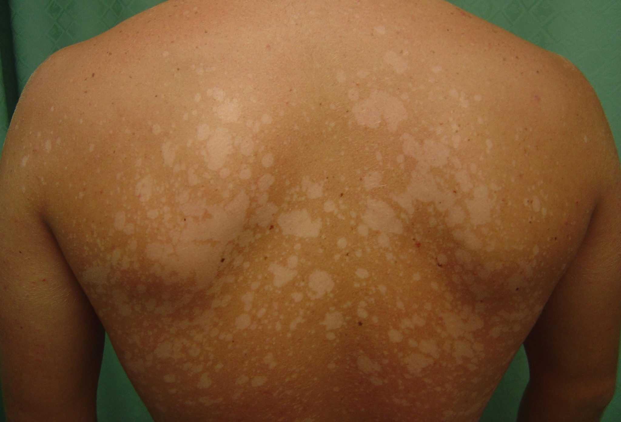 Отрубевидный лишай – грибковая инфекция кожи