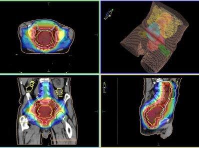 Колоректальный рак: что нужно знать