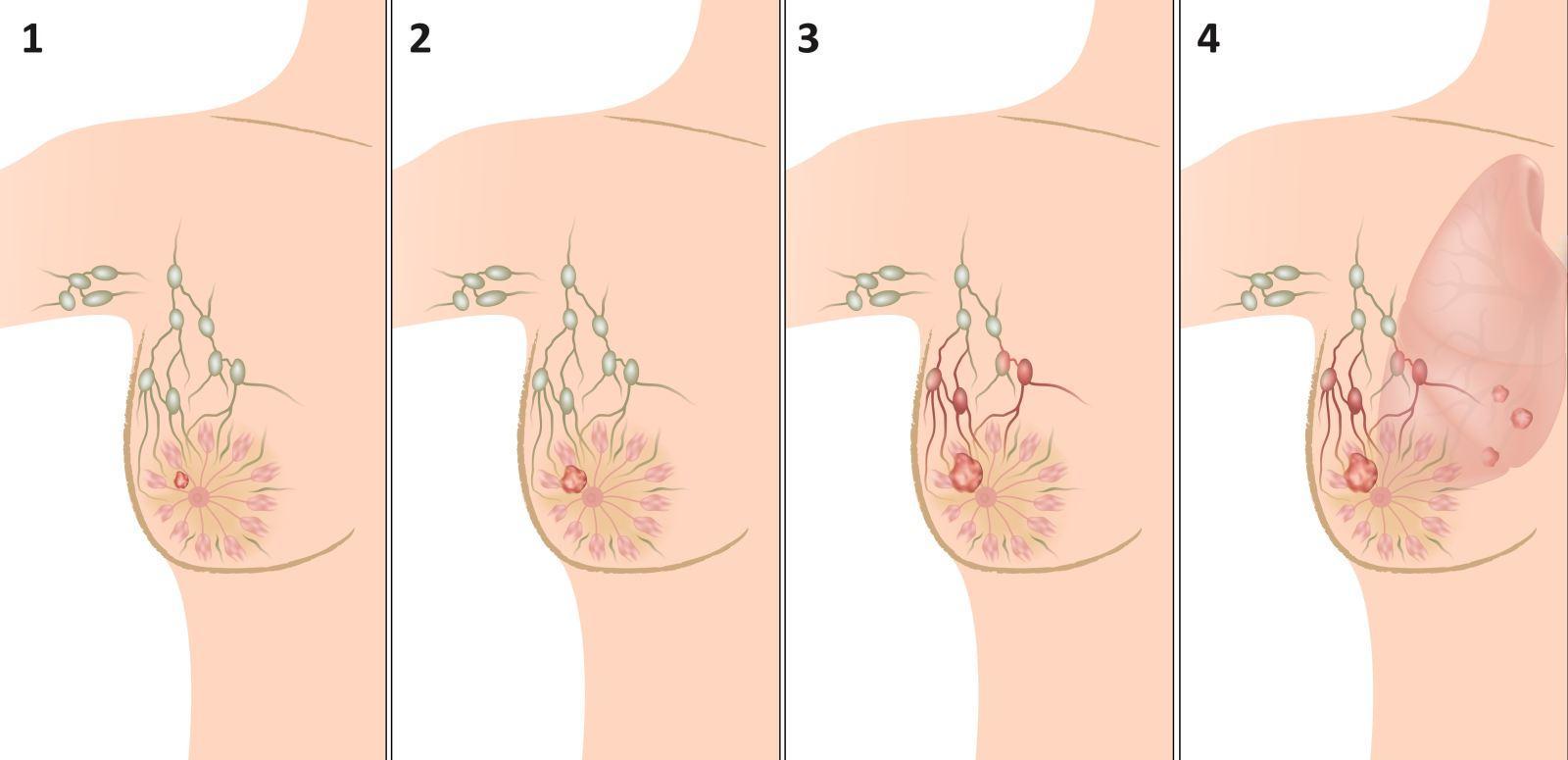Рак молочной железы: всё, что Вам нужно знать!