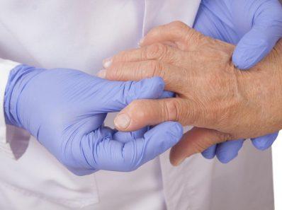 Вопросы, которые нужно задать врачу при артрите