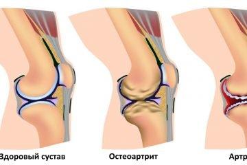 Как облегчить боль в коленях без таблеток. Артрит и артроз