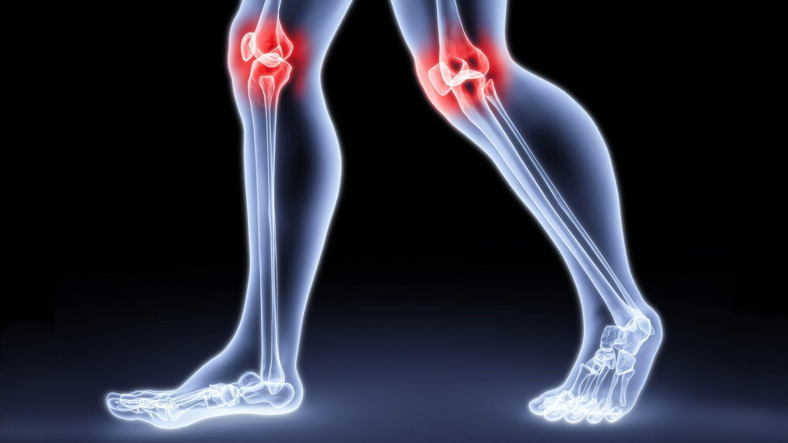 Эффективные советы по борьбе с артритом