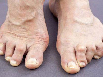 Советы по лечению боли при артрите и других симптомов