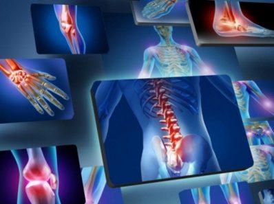 Если артрит мешает Вам жить, попробуйте эти идеи для облегчения