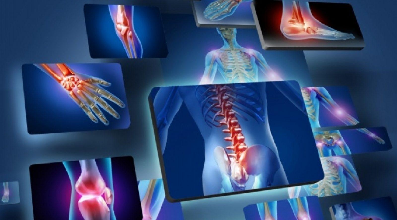 Как справиться с болью и дискомфортом при артрите