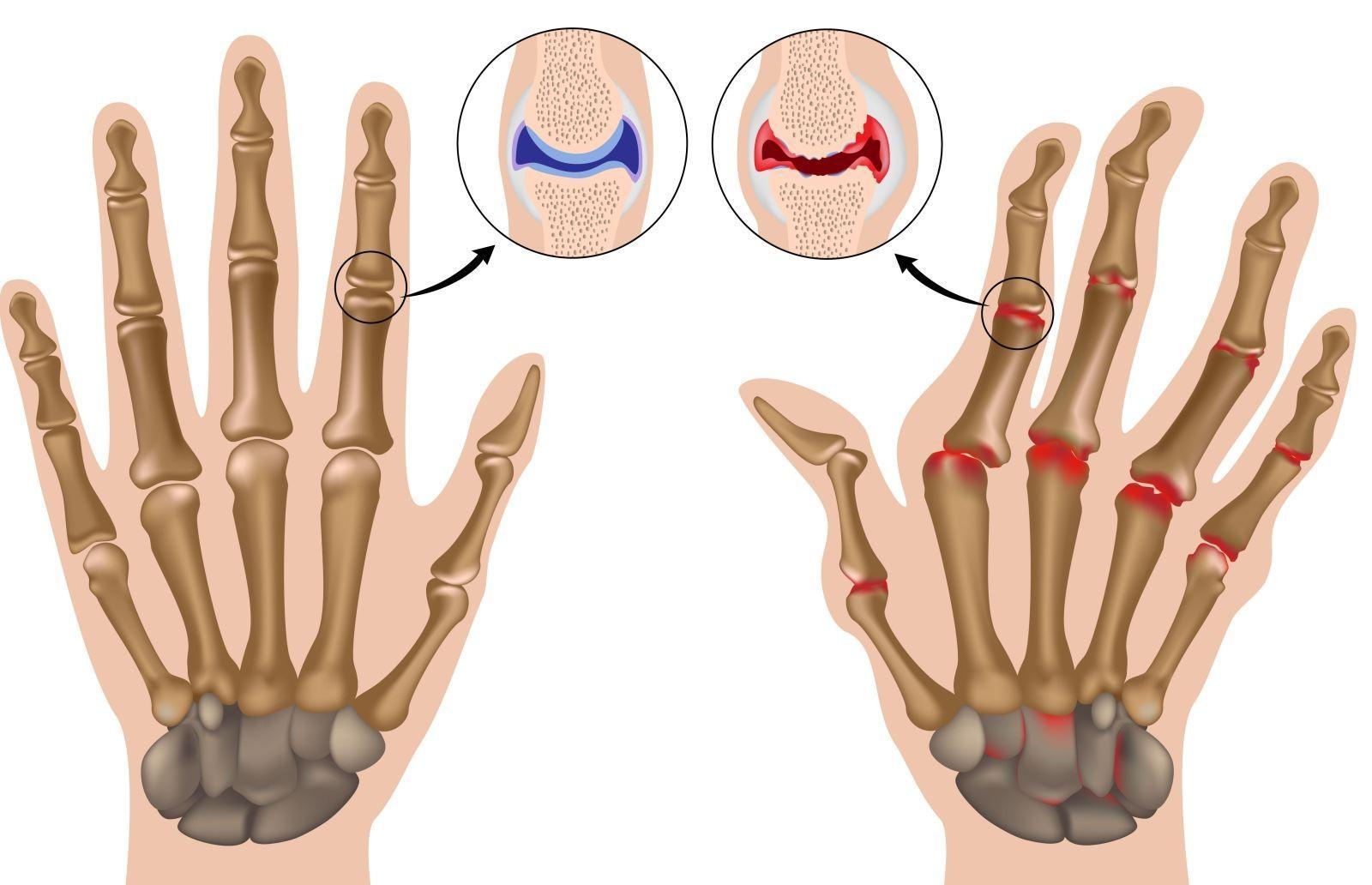 Как успешно контролировать симптомы артрита