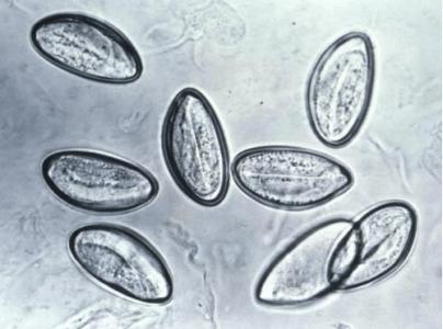 острица как паразит человека