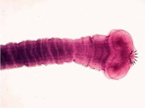 сосальщики паразиты человека обитающие