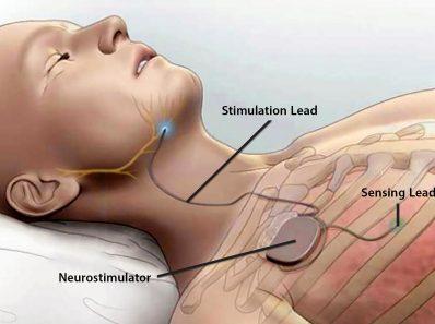1800X1200 Sleep Apnea Treatment Options Slideshow
