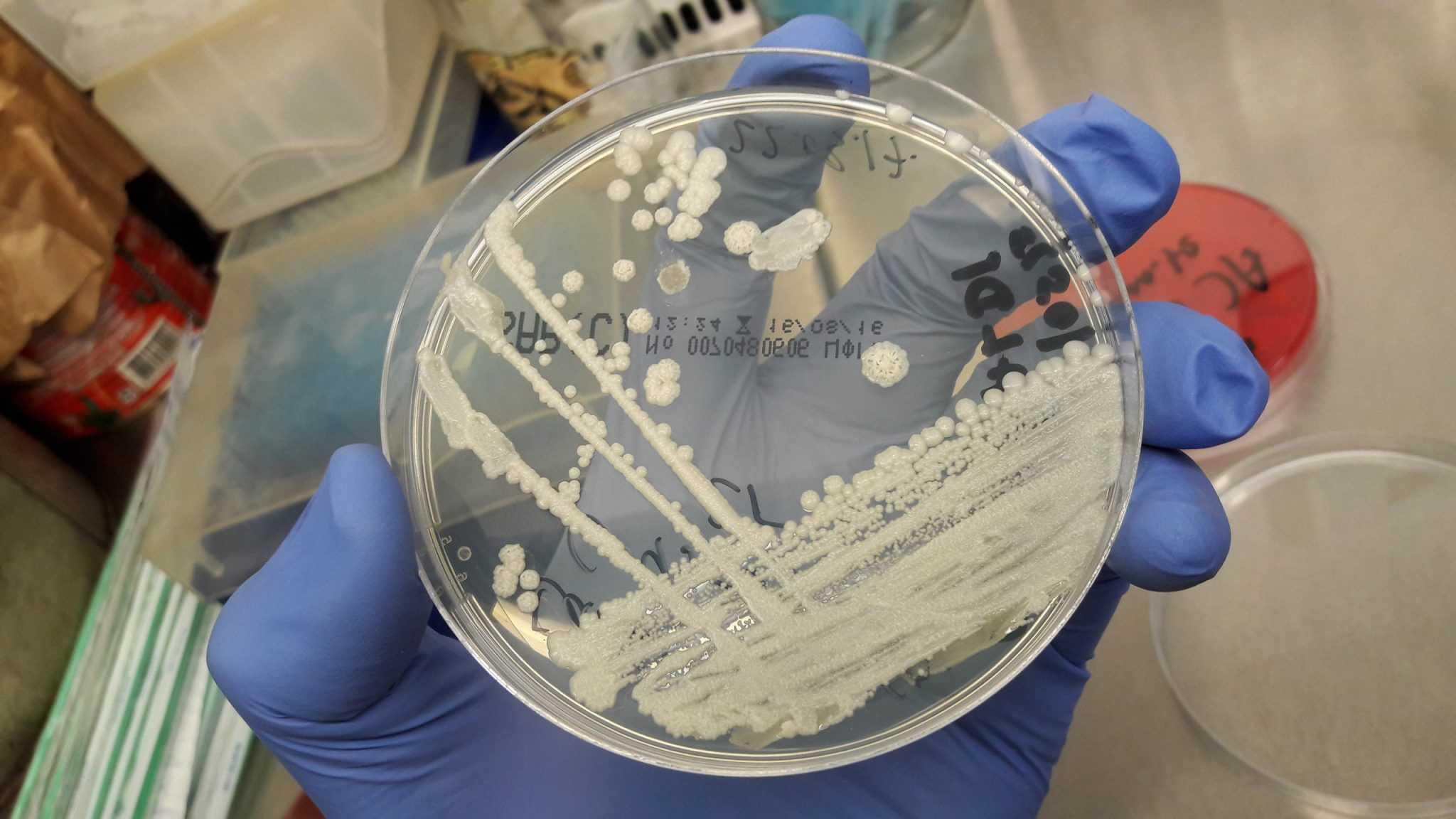 Лечение Вагинальной Дрожжевой Инфекции: Общие Принципы