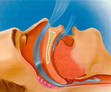 Обструктивное апноэ во сне: будьте осторожны!