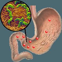 Синдром «дырявого» кишечника, целиакия и занулин