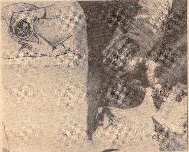 Рис. 3. Разгибание головки затылком к лону может привести к деформации шейного отдела позвоночника и травме головного мозга плода. В левом верхнем углу— рисунок из учебника «Акушерство» (М.: Медицина, 1986)