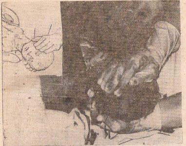 Рис. 4. Общепринятый способ выведения переднего плечика, который может привести к акушерской травме плода. В левом верхнем углу — рисунок из учебника «Акушерство» (М.: Медицина, 1986)