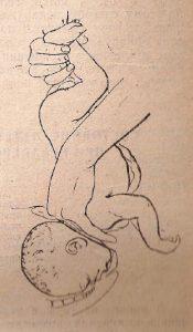 Рис. «Пражский» прием выведения головки, запрещенный в конце XIX века из-за большой травматизации плода