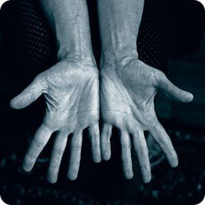 Руки и ревматоидный артрит