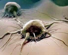 Тщетность химиотерапии при раковых заболеваниях