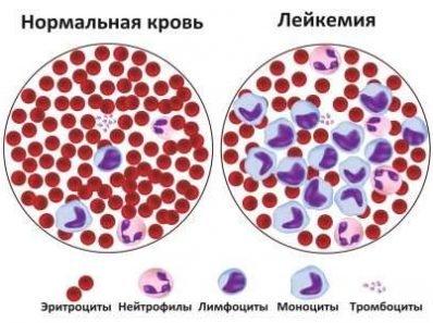 Лейкемия. Интересный Случай