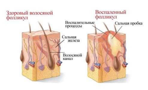 Препараты, понижающие уровень холестерина подавляют иммунную систему