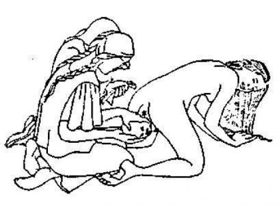 Рис. 19. Рождение ребёнка с широкими плечиками.