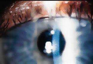 Рис. 5. На роговице после лечения кератоконуса виден только рубец