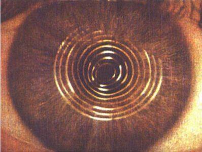 """Рис. 4. Текущие результаты кератоскопии Д.У. на левом глазу после трёх лет созерцания """"глобальной картины"""""""