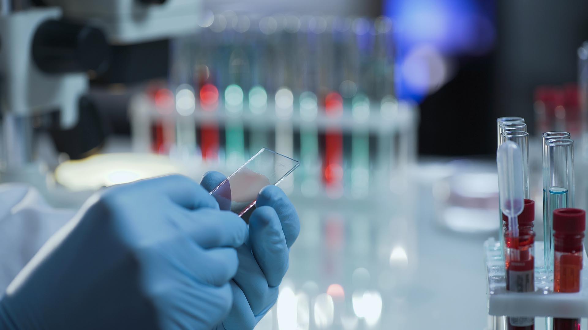 Вакцина от гепатита В и СПИД