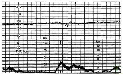 Рис. 1. «Немой», или «нулевой», тип вариабельности базального ритма.
