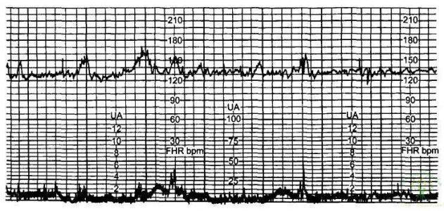 Рис. 14. Реактивность сердечно-сосудистой системы плода в пределах нормы — 5 баллов.