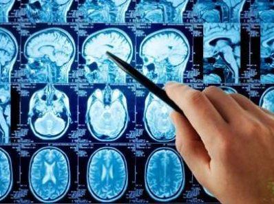В Последних Исследованиях Мозга, Посвященных Изучению Интернет-Зависимости, Затрагивается И Вопрос Порно