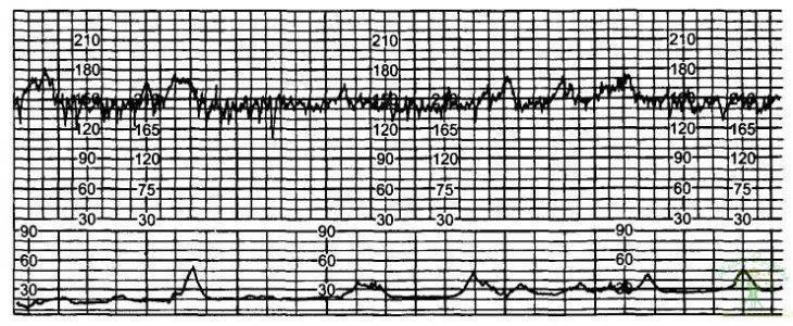Рис. 15. Начальное нарушение реактивности сердечно-сосудистой системы плода — 4 балла.