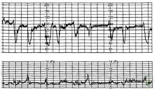 Рис. 17. Выраженное нарушение реактивности сердечно-сосудистой системы плода — 2 балла.