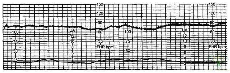 Рис. 18. Тяжелое нарушение реактивности сердечно-сосудистой системы плода — 1 балл.