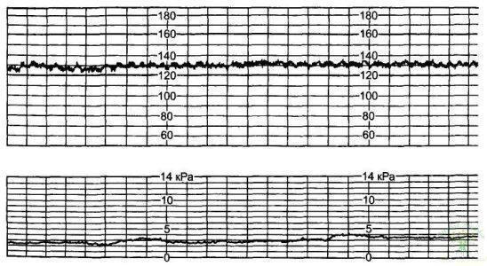 Рис. 19. Критическое нарушение реактивности сердечно-сосудистой системы плода — 0 баллов.