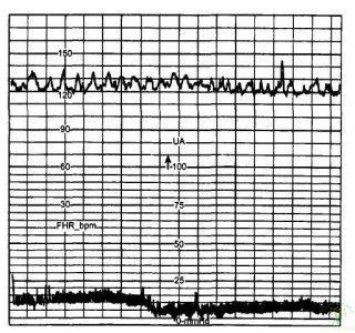 Рис. 3. Ундулирующий тип вариабельности базального ритма.