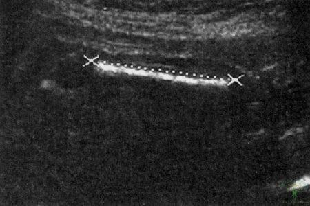 Рис. 25. Эхограмма. Измерение длины бедренной кости.