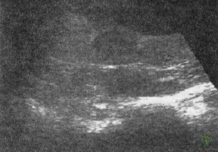 Рис. 28. Эхограмма. Степень зрелости плаценты II