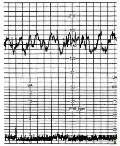 Рис. 4. Сальтаторный тип вариабельности базального ритма.