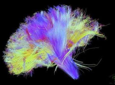 Нейробиология, интернет и качественная жизнь