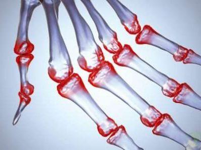 Терморегуляция у больных с острым суставным ревматизмом