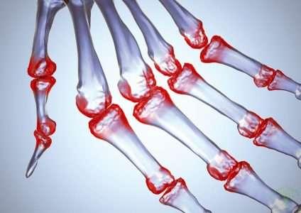 Вульвовагиниты у девочек на почве инородных тел