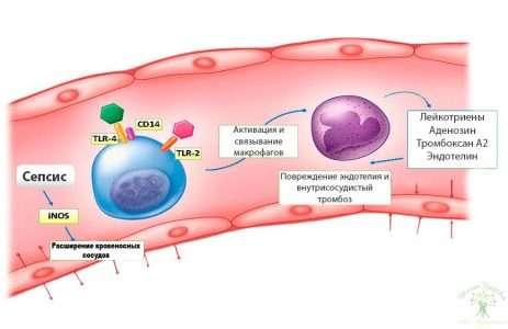 Инфекции родовых путей (цервицит, вагинит) и венозные осложнения в послеродовом периоде