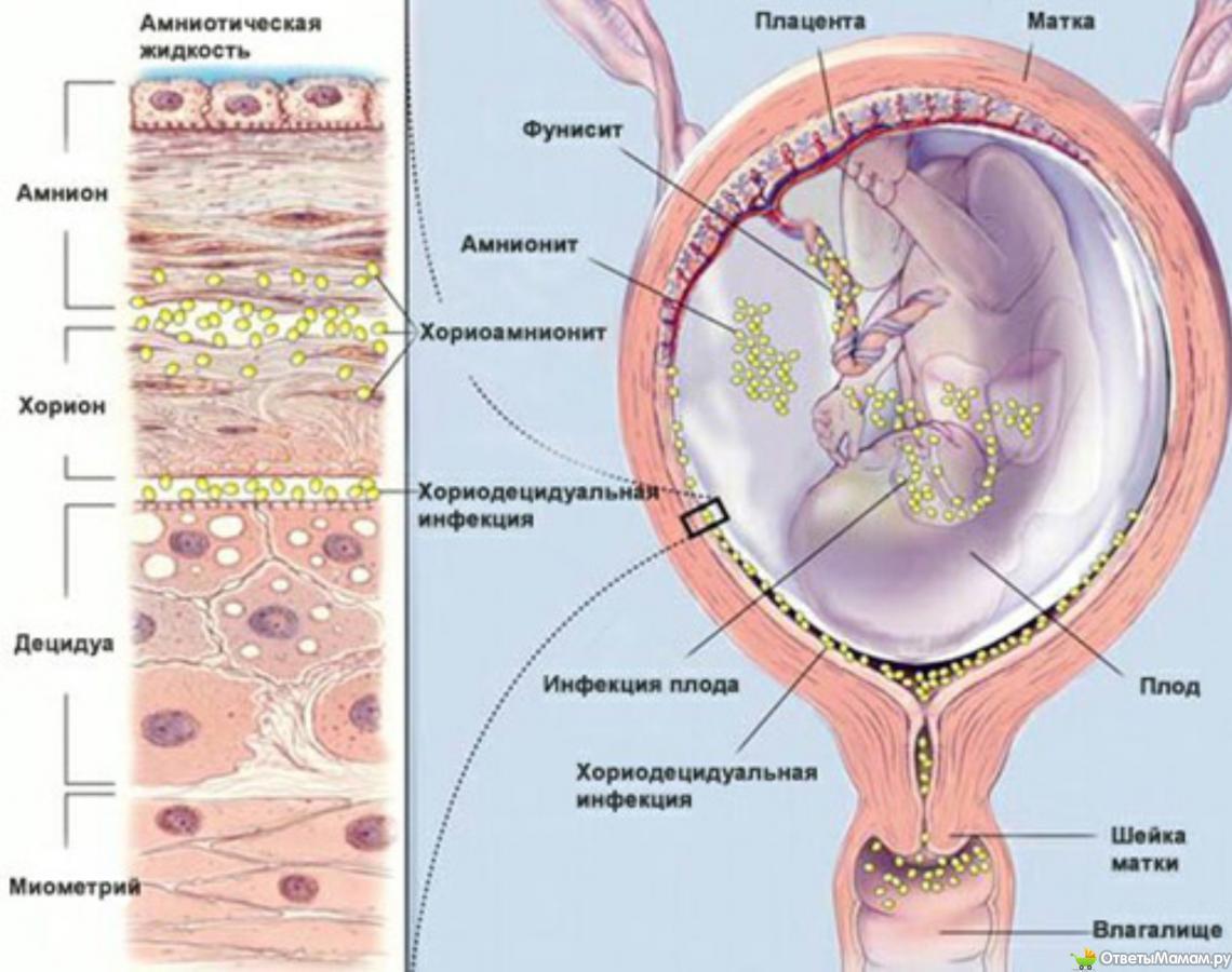 Внутриутробные инфекции. Осложнения при беременности