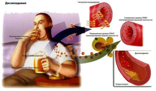 Новые директивы в отношении холестерина