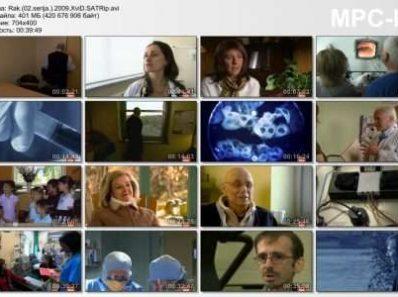 Рак / Cancer. Канада (2009)