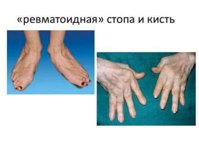 Пшеница, глютен и ревматоидный артрит