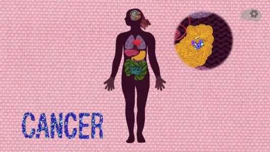 Что мешает победить рак